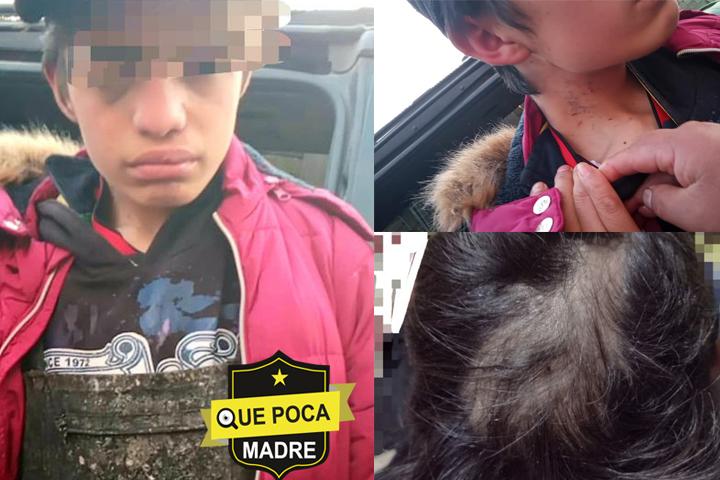"""Exigen justicia para el joven """"Juanito"""" maltratado por sus padres en Temoaya"""